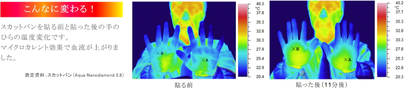 スカットバンを貼る前と貼った後の手のひらの温度変化です。マイクロカレント効果で血流が上がりました。